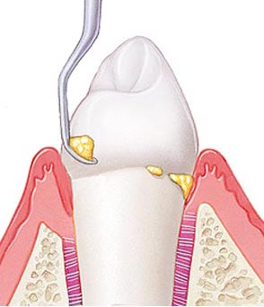 от чего образуется зубной камень
